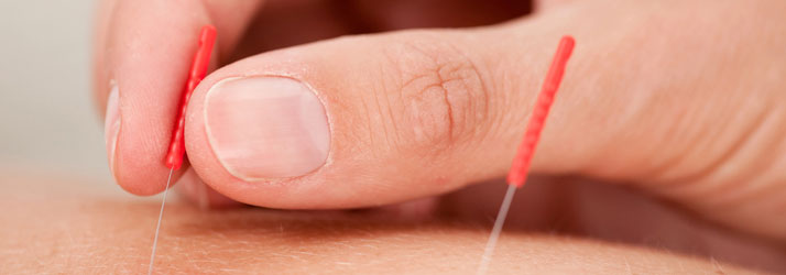 Acupuncture in SE Calgary